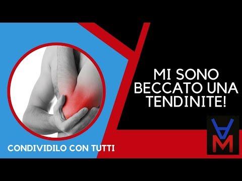 Instabilità dellarticolazione del ginocchio segni protesi