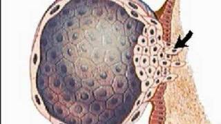 Implantation of the Ovum (Human Embryo)