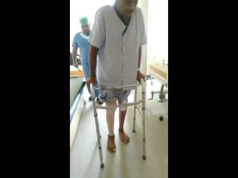 Patient walking after both Knee Replacement Surgery- Dr. Gaurav Gupta