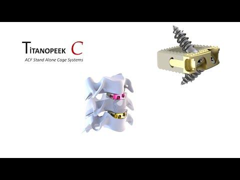 osimplant-titanopeek-surgical-technics-1542265008.jpg