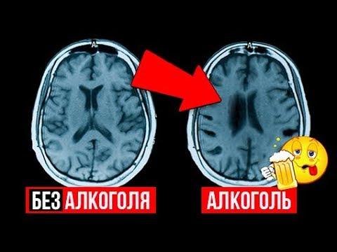 Лечение алкоголизма метод довженко