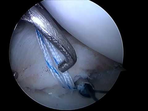Osteocondrosis tratamiento 1 grado