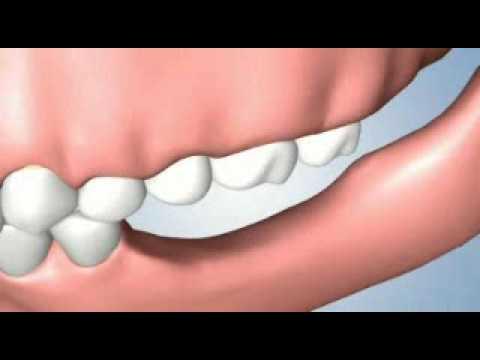 Several teeth problems