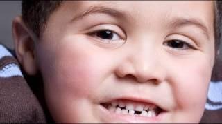 Pronóstico y tratamiento para un diente roto de un niño