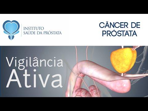 Orina para la próstata