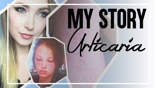 My Story: Urticaria (Chronic Idiopathic Hives)