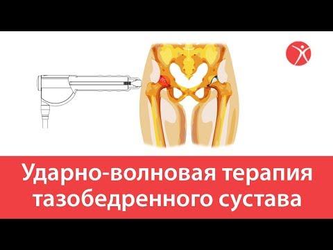 Ударно-волновая терапия тазобедренного сустава в клинике Стопартроз