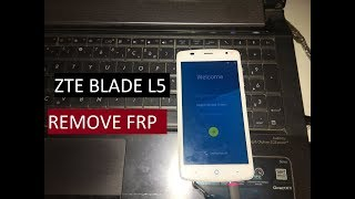 Timmy M20 Remove google account Bypass FRP Without box or PC
