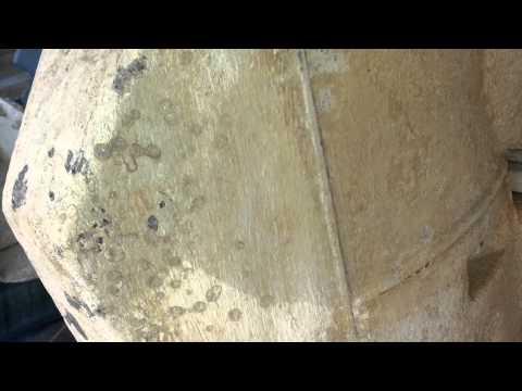 Togliere una pietra su rimedi di gente di pollice di gamba