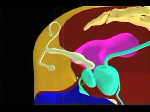Lecturas de prueba de orina para la próstata