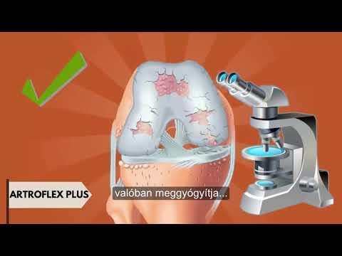 Üdülőhelyek arthritis arthritis kezelés