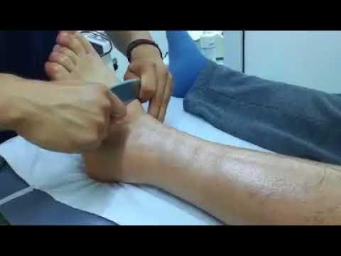 La preparazione per un intervento chirurgico per unendoprotesi dellanca