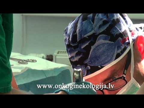 Zagostrennya hronіchnogo prostatīts