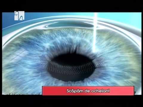 Cum să vindeci cartea de vedere