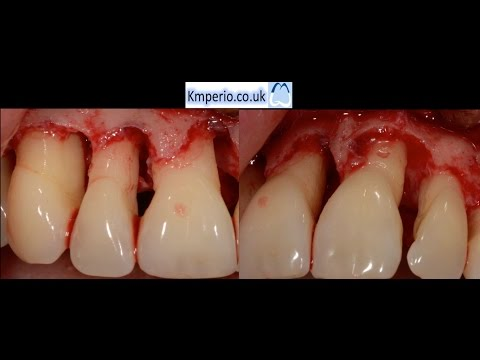 Periodontal Surgery with Regeneration for Upper Teeth