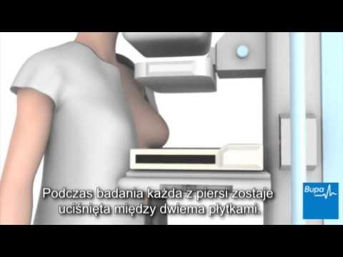 Powiększenie piersi z proginova