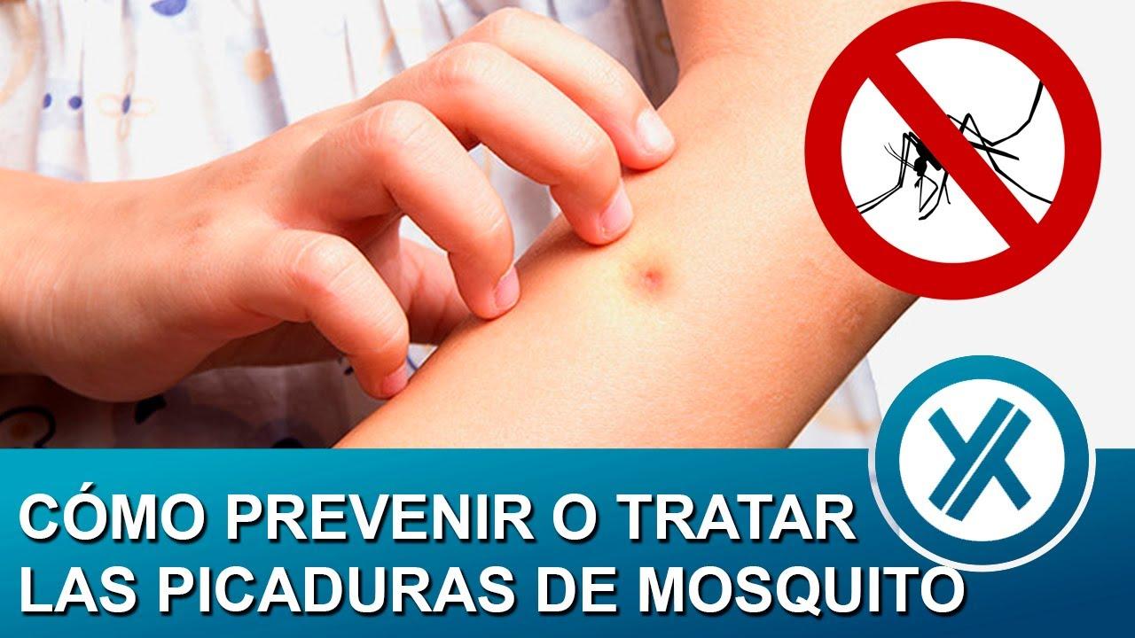 Cómo prevenir o tratar las picaduras de mosquitos - InsectDhu® de MamaNatura│ Zuri │ YUMETOKI
