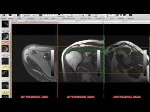 Interpretacja rezonansu magnetycznego barku - RM barku