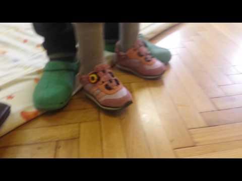 Wszystkie rodzaje zniekształceń stóp
