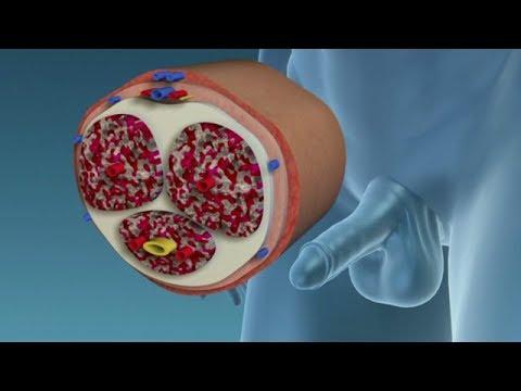 Les symptômes de la séparation du sang prostatite