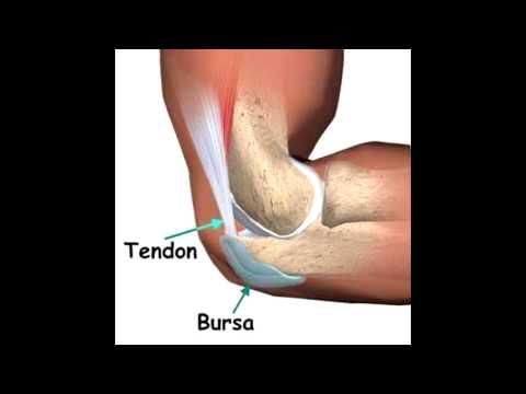 Qué hacer con la inflamación de las articulaciones en la pierna