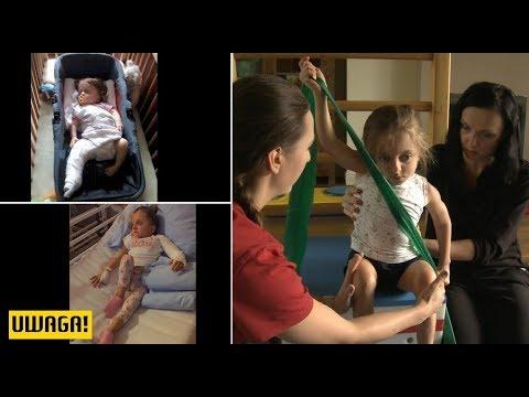 Koślawe kolana u dziecka 4 lata