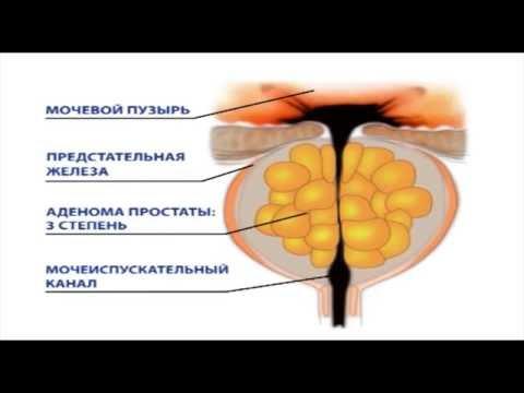 Лечение хронического простатита в германии