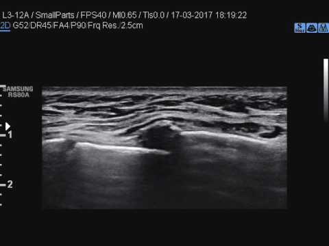 Mal di schiena nella parte bassa della schiena esercizi Bubnovsky