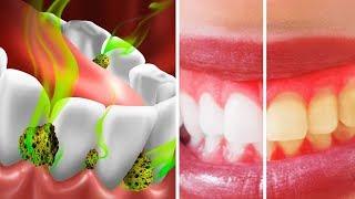 10 Способов Избавиться от Плохого Запаха Изо Рта