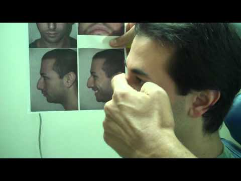 Dr. Epstein – 3 Month Post-Op Results from Male Rhinoplasty Procedure