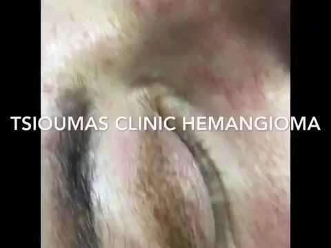 Αντιμετώπιση Αιμαγγειώματος με Plexr - Tsioumas Clinic - Hemangioma