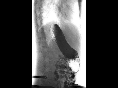 Hiv akut stádiumú prosztatagyulladás