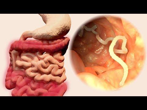 Paraziták az emberi szájban, A Magyarországon előforduló féregfertőzések
