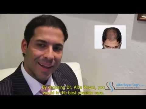 Mr. Ramon Portiero Tells about Hair Transplant Dominican Republic Experience