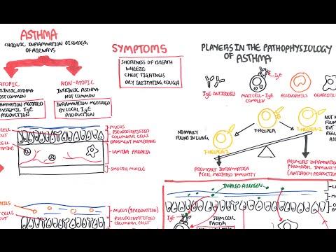 Patofizjologia astmy