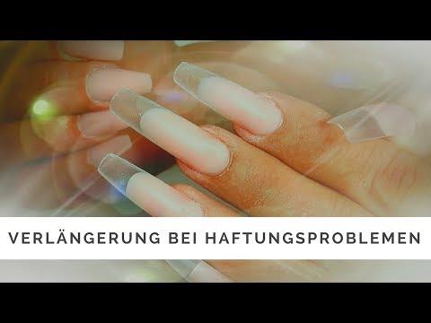 Das Medikament von gribka auf den Nägeln der Preis