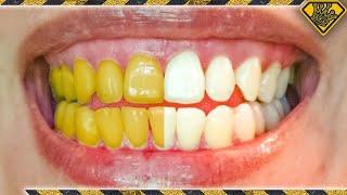 What Teeth Whitening Methods ACTUALLY Work?