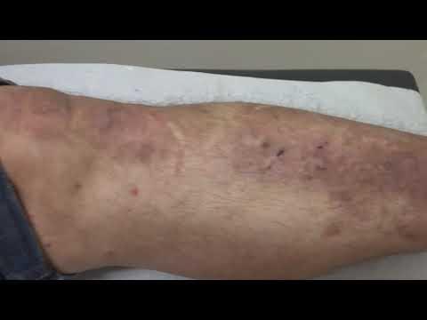 Tratamento de eczema em uma primeira etapa
