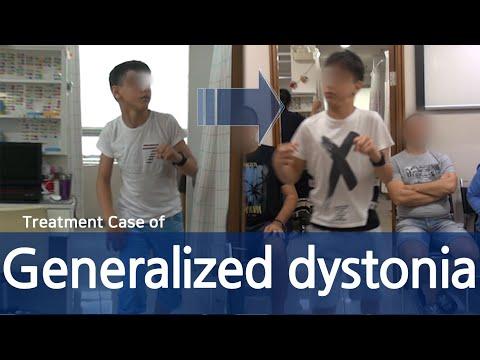 Vegetatív-vaszkuláris dystonia vagy magas vérnyomás. Vegeto-vascularis dystonia