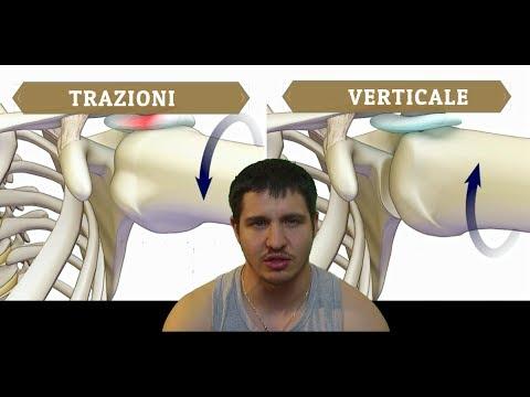 Grave dolore rastrellamento schiena