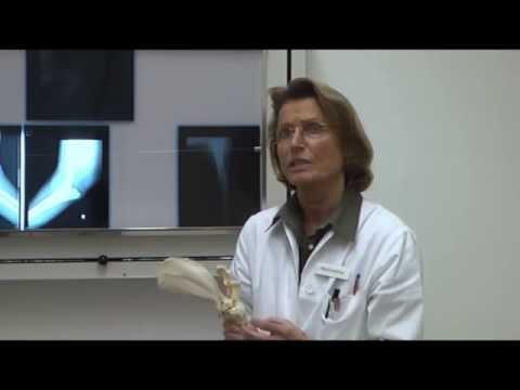 Ist limfousel auf dem Hals die Behandlung hervorgetreten