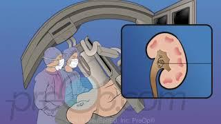 Kidney Stones Surgery - PreOp® Patient Education & Patient Engagement