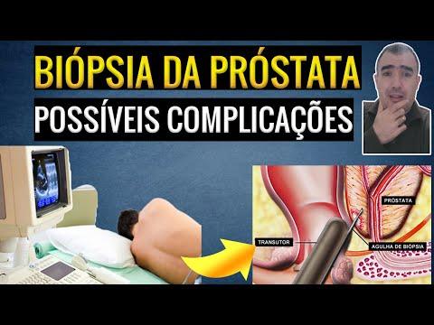 Un cambiamento nella prostata