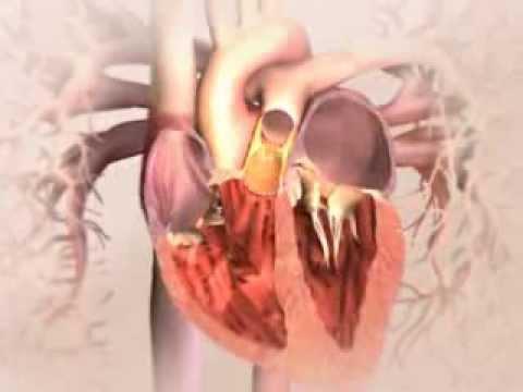 Dysautonomie somatoforme de type hypertensive