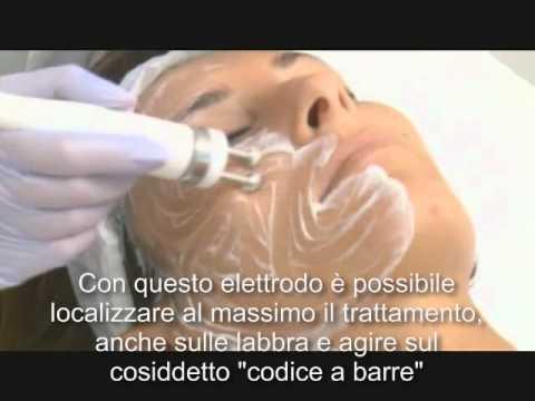 Trattamento di varicosity su