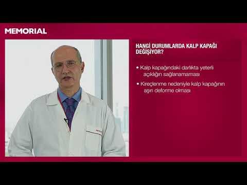 Kazanılmış kalp hastalıkları nelerdir?
