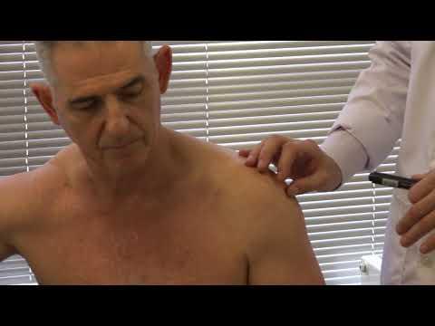 Физикальное исследование пациента при боли в плечевом суставе
