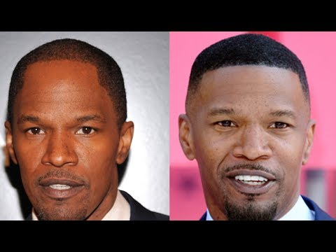 Celebrity Hair Transplant Transformations! Why shaved head