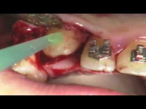 Osteoartrite del ginocchio dellesercito 2 gradi