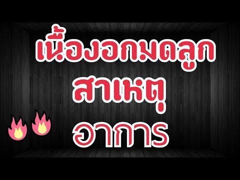 ปรสิต EVA 2 NK